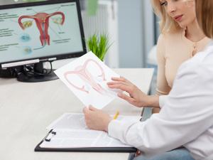 """""""最常见""""的女性良性肿瘤,子宫"""