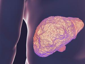 病毒性肝硬化是怎么回事?揪出三