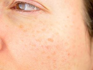 盘点:接触性皮炎,有这四个常见症状