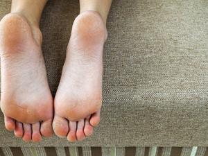 天气变暖,脚气汹汹