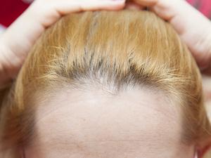 """生孩子需要""""牺牲""""头发?教你三招hold住产后掉发"""