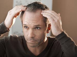 植发成男青年最热衷医美项目!脱发就该多吃这些食物