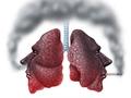 """实在戒不了烟,也要""""护肺""""!"""