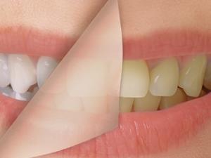 给牙齿做美容 请慎重选择