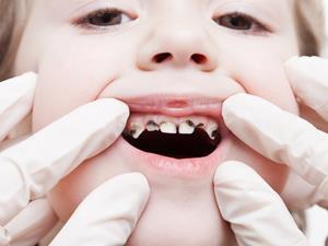 小儿龋齿,危害,烂牙,广东省妇幼保健院,小儿龋齿不处理或引来四危害