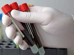 慢性肝病患者检测血常规的意义