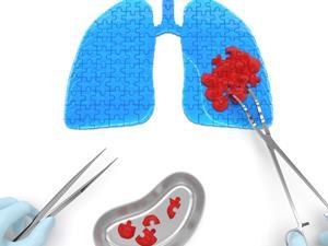 肺癌早期症状不一定发生在肺部