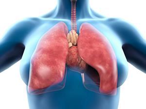 """治了三个月的""""肺炎""""为何成了肺癌"""