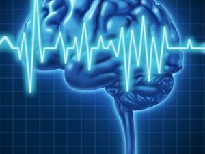 中风先兆症状,中风,中风信号,脑动脉硬化