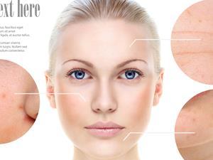 皮肤癌预防