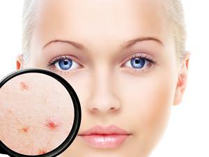 预防青春痘