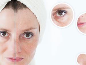 为什么女人更容易长斑?真正原因居然是……