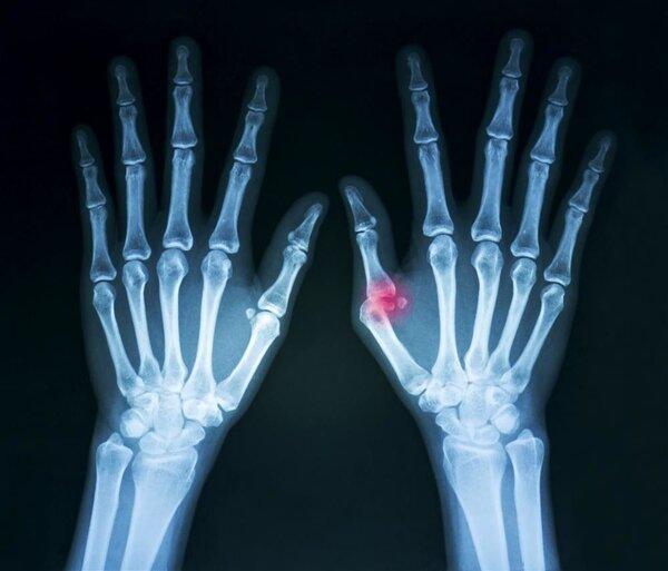 脱臼自行复位就行?关于脱臼的3个常见的误区,你应该知道