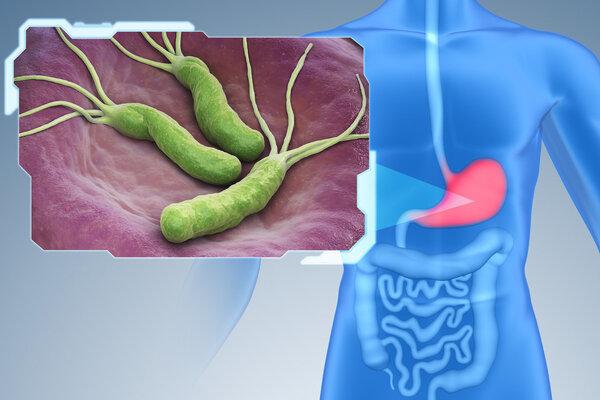 89%的胃癌都与它有关!这种一类致癌物,你真的了解吗?