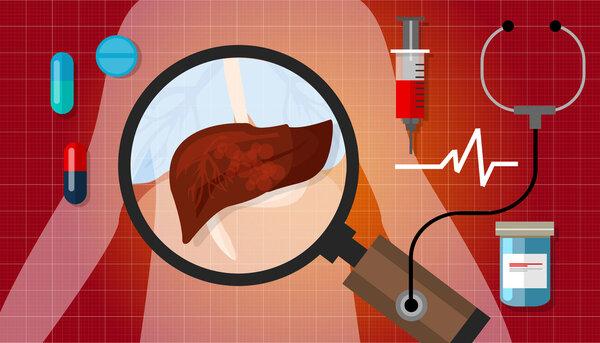 有规律地轻度锻炼或能帮助有效降低人群患肝