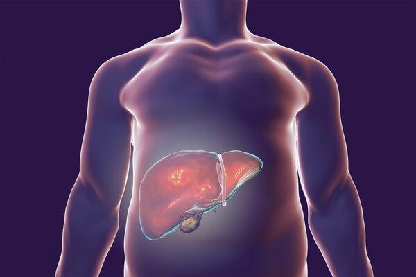 吴孟达罹患肝癌,肝癌预警有这四个症状!