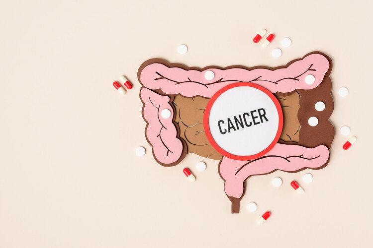 医生直言相告:全球超一半食管癌在中国,总