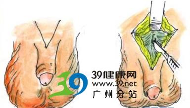 实图详解:阴茎延长手术全程