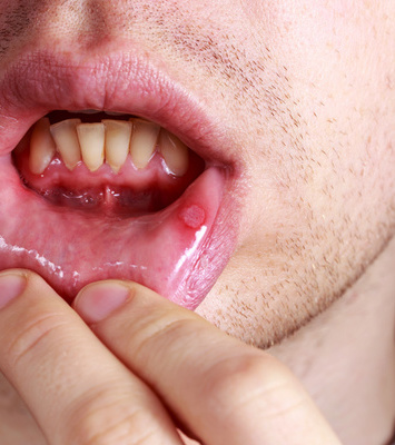 疱疹性咽峡炎图片