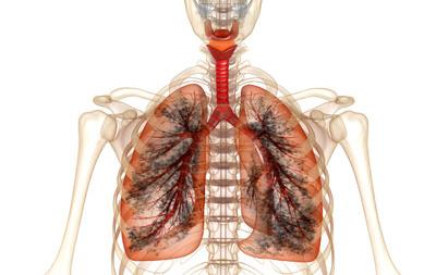 支气管炎图片
