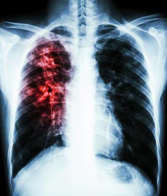 肺结核图谱
