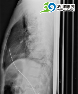 访骨科专家陈少文:十 螺钉支撑的胸椎