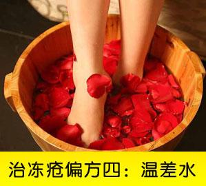 网友推荐治冻疮偏方四:温差水泡法