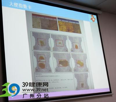 广州市妇女儿童医疗中心外科主任钟薇:宝宝黄疸持续不退 父母应警惕是胆道闭锁
