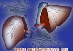 绝症不绝第2期:活体肝移植