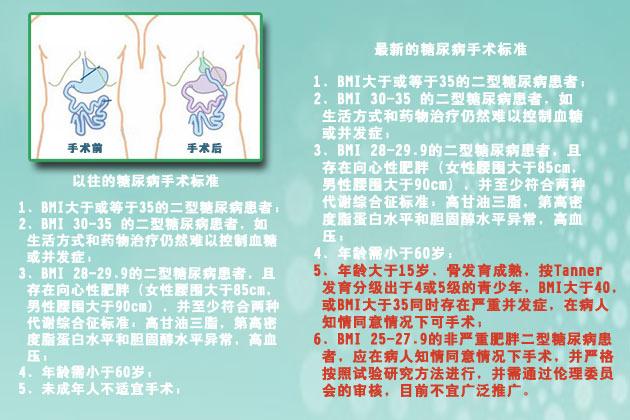 胃旁路手术治疗糖尿病新标准
