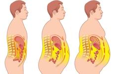 先天免疫系统对高脂肪饮食的反应导致肥胖