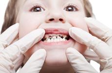 10个孩子7个蛀牙,这个误区千万不能有!