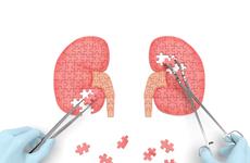 抑制生成VS促进排泄,哪种降尿