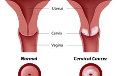 母亲体检发现宫颈癌,一波三折多次化疗接近完全缓解