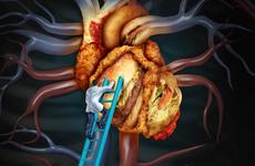 最新欧洲慢性冠脉综合征指南公布,更新亮点在这里!