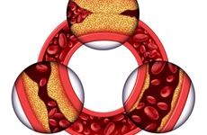 怎样预防动脉硬化 预防动脉硬化的方法是什么
