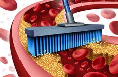 最新欧洲血脂管理指南公布,10大关键信息极速闪递!