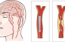 脑梗死发病与哪些因素有关,你了解多少?