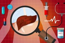 """肝癌来临前,身体给你了5个""""信号"""",早知道能救命,别大意"""