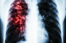 最致命耐药肺结核终有救!美药监局批准治疗高度耐药肺结核新药