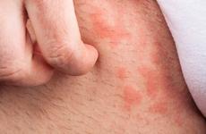 首个非激素外用PDE-4抑制剂舒坦明在中国获批 用于轻中度特应性皮炎患者的治疗