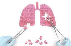 肺炎球菌我国儿童感染率高 专家呼吁强科普重预防