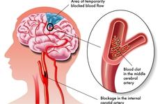COVID-19期间因短暂性脑缺血发作、轻度和中度卒中而住院的人数减少