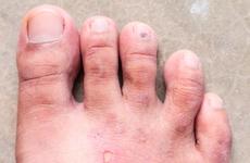 夏天来了,你的脚气犯了吗?脚气来袭该怎么办?