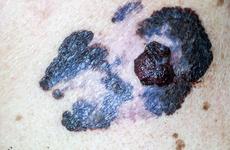 诺华达拉非尼联合曲美替尼获批黑色素瘤辅助治疗,双靶治疗添新适应症