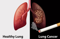 K药又获肺癌新适应症,食管癌已在路上