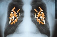 广东省中医院肺癌诊疗一体化中心启动,打造中西医整合管理标杆!