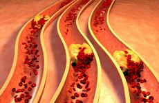 快快减肥吧!40岁之前肥胖会显著增加多种癌症风险!