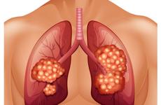 肺癌患者治疗方式如何选?专家:免疫联合抗血管生成治疗或成未来方向
