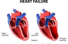 心力衰竭负担沉重,新型药物有望开创HFrEF治疗新局面